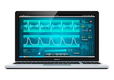 Ноутбук с кардиограммой