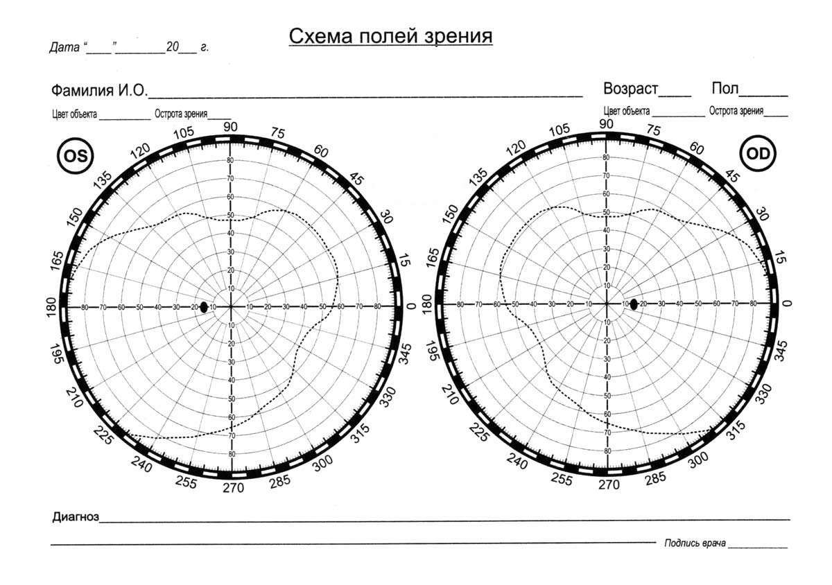 Схема полей зрения