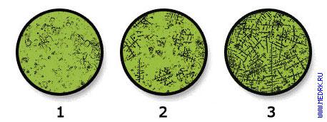 Тест на овуляцию по слюне микроскоп Цикл с тест полосками по выгодной цене