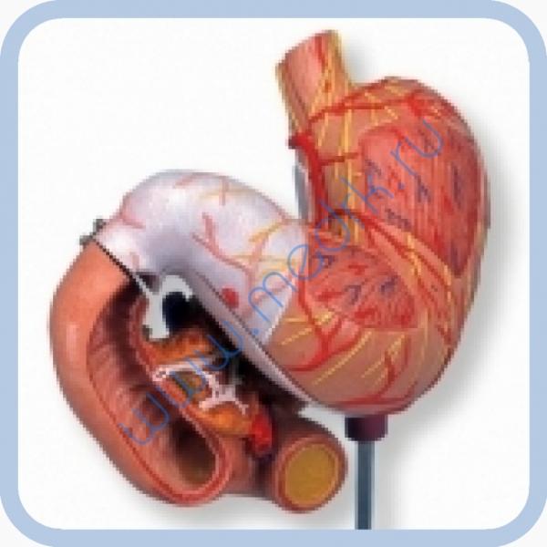 Макет человеческого желудка из 3 частей K16  Вид 1