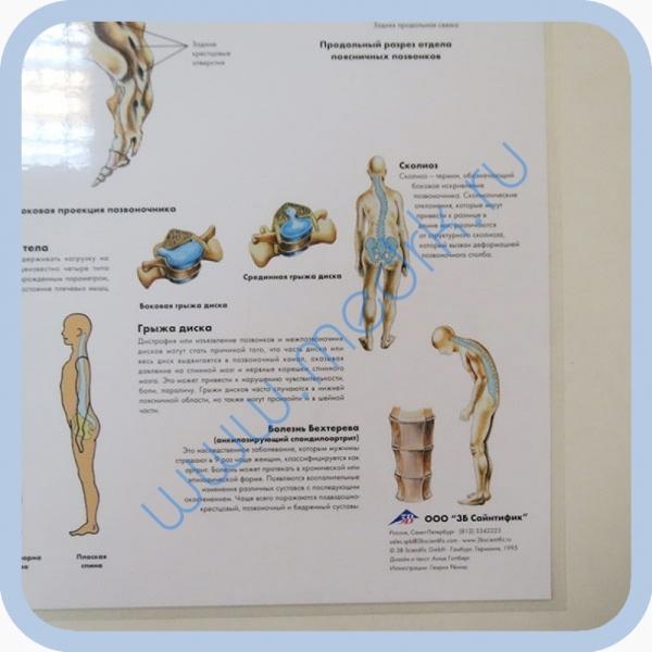 Плакат Позвоночный столб ламинированный 3B Scientific  Вид 2