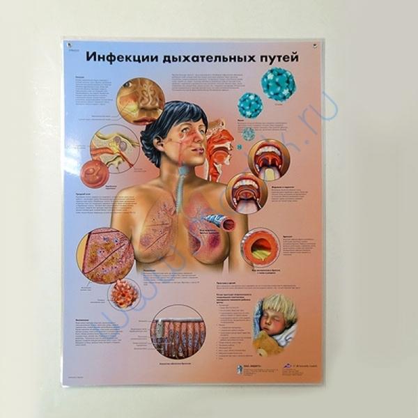 Плакат Инфекции дыхательных путей ламинированный, 3B Scientific  Вид 1