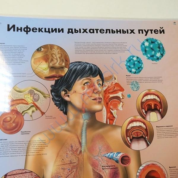Плакат Инфекции дыхательных путей ламинированный, 3B Scientific  Вид 2
