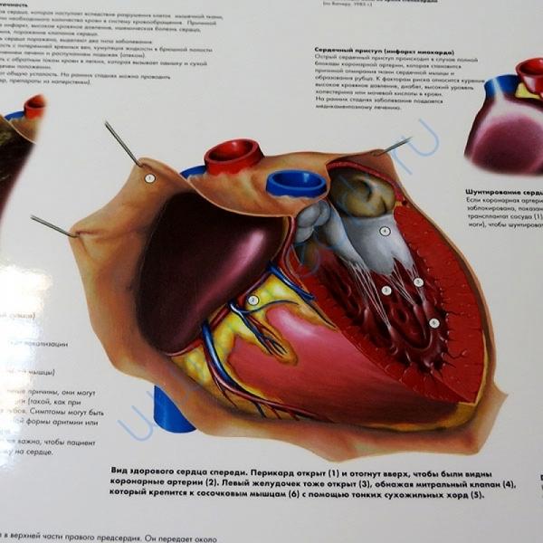 Плакат Распространенные сердечные заболевания ламинированный  Вид 1