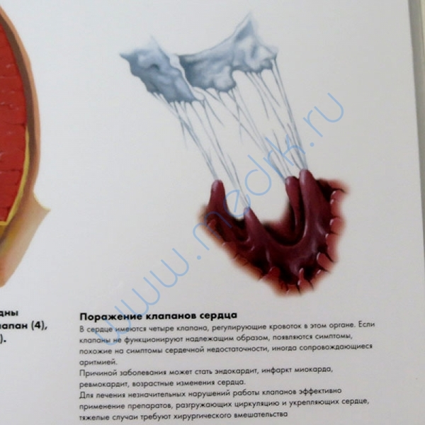 Плакат Распространенные сердечные заболевания ламинированный  Вид 2
