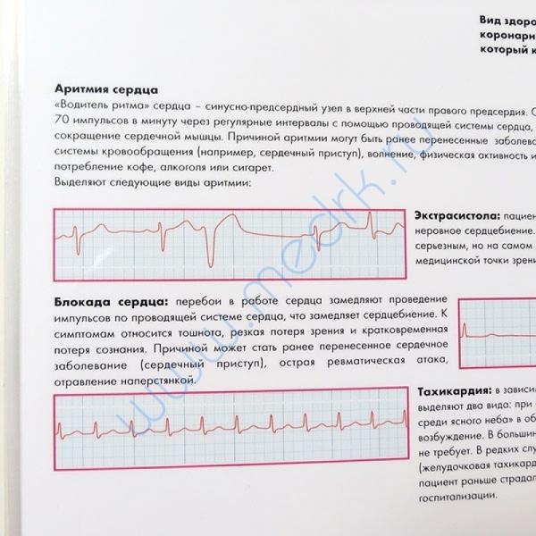 Плакат Распространенные сердечные заболевания ламинированный  Вид 4