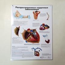 Плакат Распространенные сердечные заболевания ламинированный