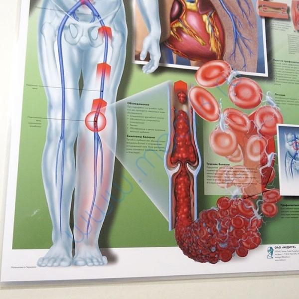 Плакат Тромбоз глубоких вен ламинированный  Вид 2