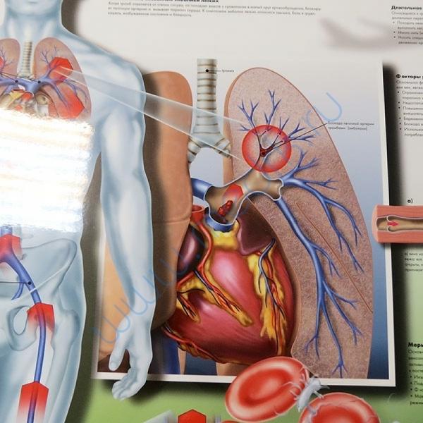 Плакат Тромбоз глубоких вен ламинированный  Вид 3