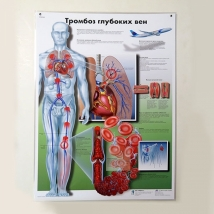 Плакат Тромбоз глубоких вен ламинированный