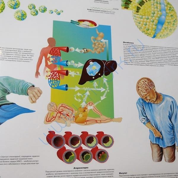 Плакат Холестерин ламинированный  Вид 2