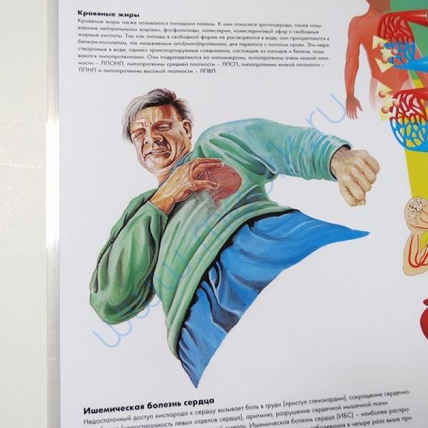 Плакат Холестерин ламинированный  Вид 4