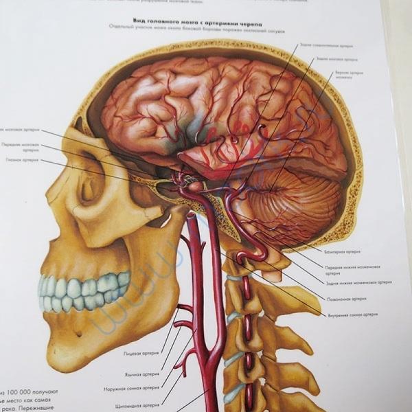 Плакат Инсульт, 50х67см, ламинированный, 3B Scientific   Вид 2