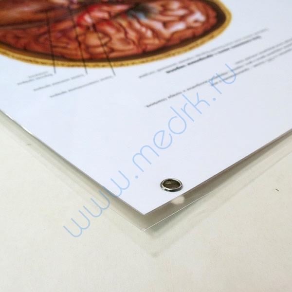 Плакат Инсульт, 50х67см, ламинированный, 3B Scientific   Вид 4