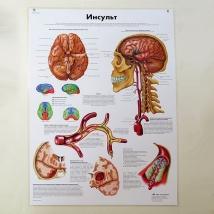 Плакат Инсульт, 50х67см, ламинированный, 3B Scientific
