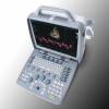 Сканер ультразвуковой SIUI Apogee 1100 Omni