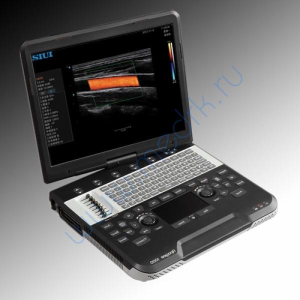 Сканер ультразвуковой SIUI Apogee 1100 Diamond  Вид 1