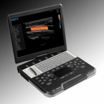 Сканер ультразвуковой SIUI Apogee 1100 Diamond