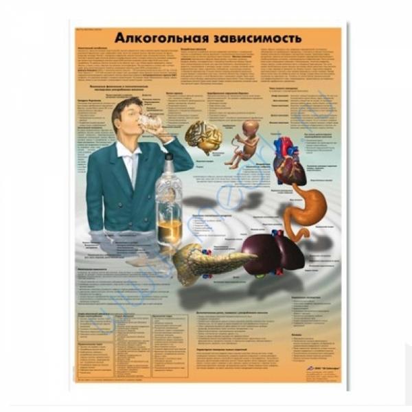 Плакат Алкогольная зависимость 3B Scientific