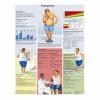 Плакат медицинский Ожирение ламинированный русифицированный